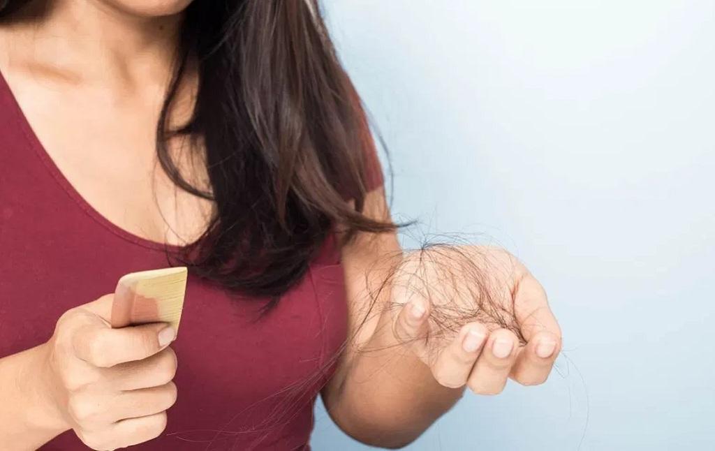 Top Organic Remedies for Hair Loss